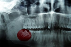 important questions about wisdom teeth