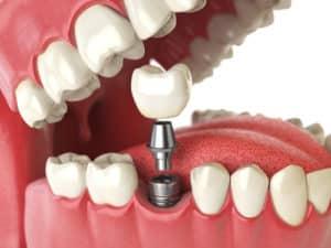 kania-implant